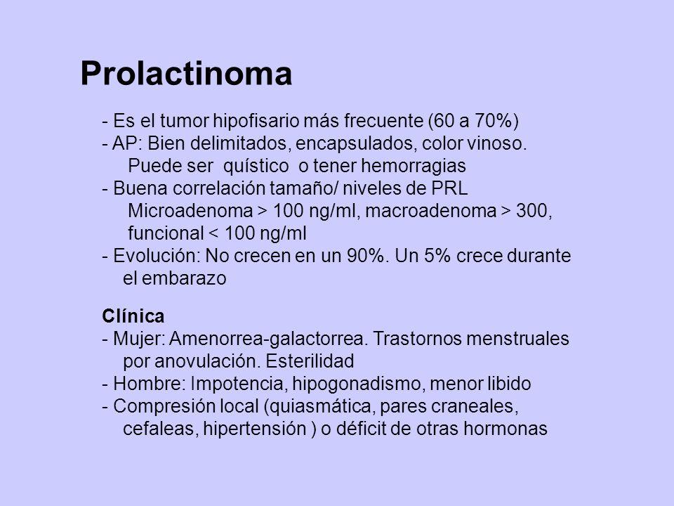 Prolactinoma - Es el tumor hipofisario más frecuente (60 a 70%) - AP: Bien delimitados, encapsulados, color vinoso. Puede ser quístico o tener hemorra
