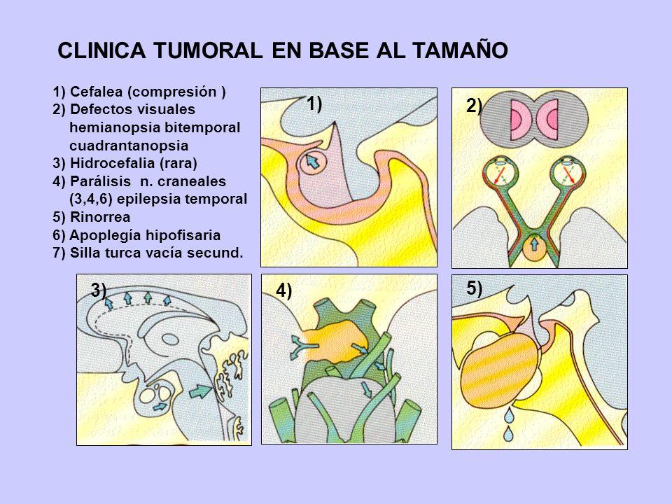 CLINICA TUMORAL EN BASE AL TAMAÑO 1) 2) 3)4) 5) 1) Cefalea (compresión ) 2) Defectos visuales hemianopsia bitemporal cuadrantanopsia 3) Hidrocefalia (