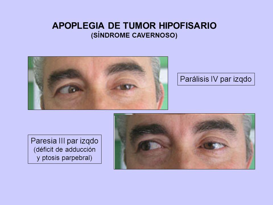 APOPLEGIA DE TUMOR HIPOFISARIO (SÍNDROME CAVERNOSO) Parálisis IV par izqdo Paresia III par izqdo (déficit de adducción y ptosis parpebral)