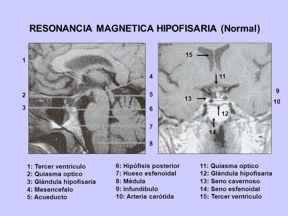 RESONANCIA MAGNETICA HIPOFISARIA (Normal) 1 2 3 4 5 6 7 8 9 10 11 12 1: Tercer ventrículo 2: Quiasma optico 3: Glándula hipofisaria 4: Mesencefalo 5:
