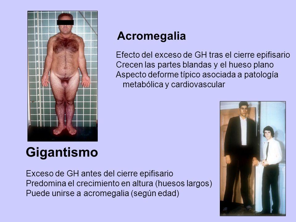 Acromegalia Efecto del exceso de GH tras el cierre epifisario Crecen las partes blandas y el hueso plano Aspecto deforme típico asociada a patología m