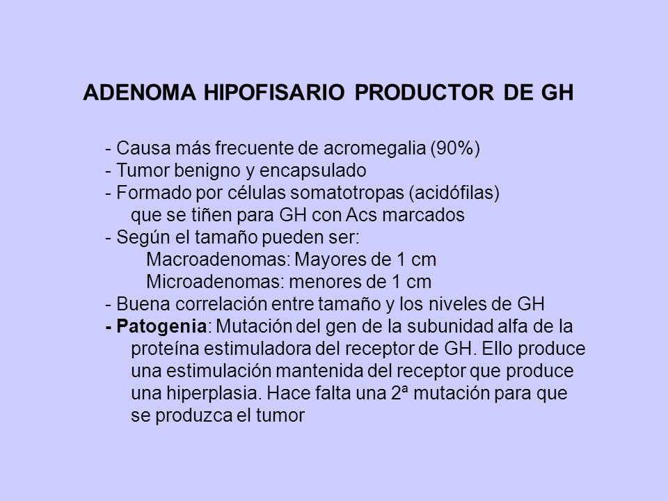ADENOMA HIPOFISARIO PRODUCTOR DE GH - Causa más frecuente de acromegalia (90%) - Tumor benigno y encapsulado - Formado por células somatotropas (acidó