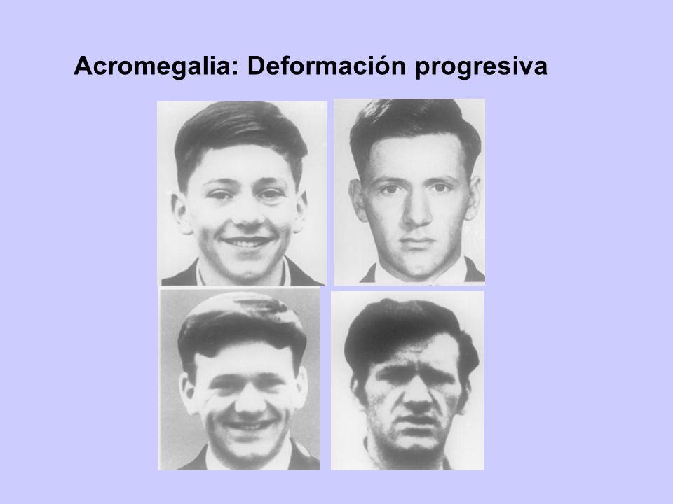 Acromegalia: Deformación progresiva