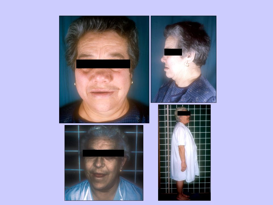 Diastema Bocio Prognatismo Grosor partes blandas Acromegalia