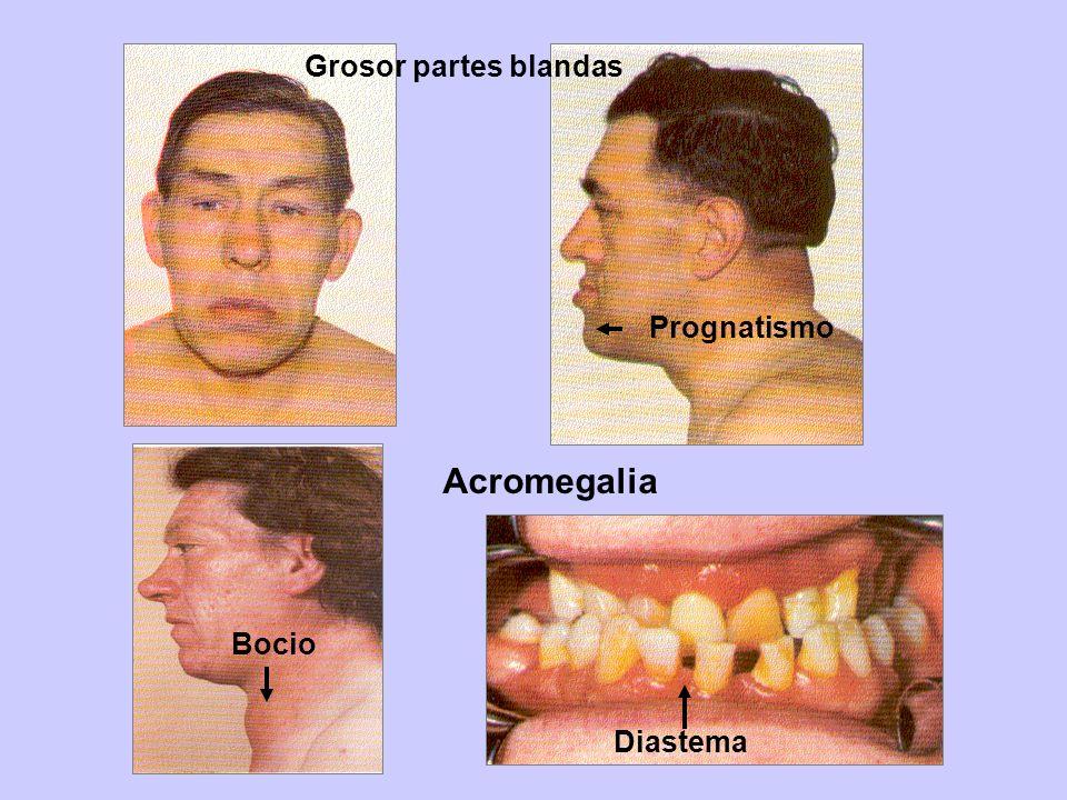 Mano y pie de un paciente con acromegalia Aumento del grosor de la piel
