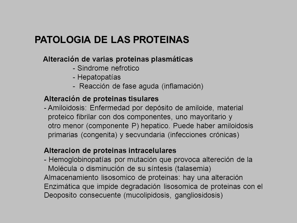 PATOLOGIA DE LAS PROTEINAS Alteración de varias proteinas plasmáticas - Sindrome nefrotico - Hepatopatías - Reacción de fase aguda (inflamación) Alter