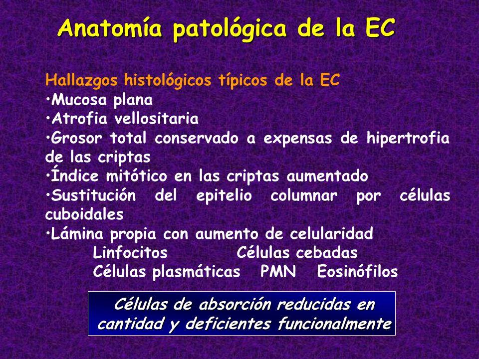 Anatomía patológica de la EC Hallazgos histológicos típicos de la EC Mucosa plana Atrofia vellositaria Grosor total conservado a expensas de hipertrof