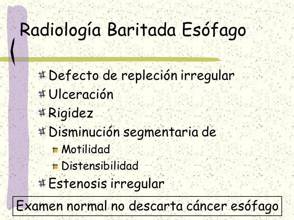 Radiología Baritada Esófago Defecto de repleción irregular Ulceración Rigidez Disminución segmentaria de Motilidad Distensibilidad Estenosis irregular