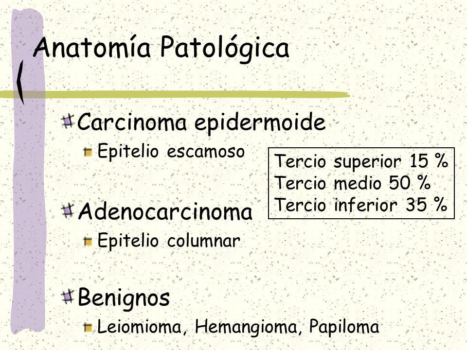 Anatomía Patológica Carcinoma epidermoide Epitelio escamoso Adenocarcinoma Epitelio columnar Benignos Leiomioma, Hemangioma, Papiloma Tercio superior