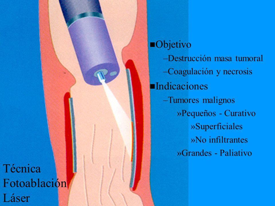 Técnica Fotoablación Láser Objetivo –Destrucción masa tumoral –Coagulación y necrosis Indicaciones –Tumores malignos »Pequeños - Curativo »Superficial