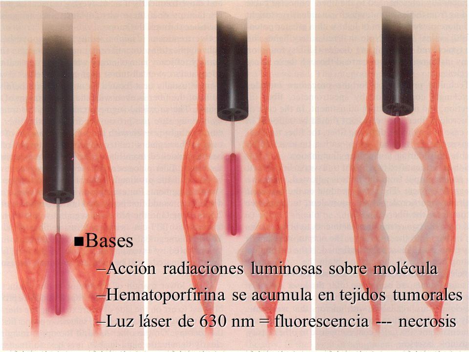 Bases –Acción radiaciones luminosas sobre molécula –Hematoporfirina se acumula en tejidos tumorales –Luz láser de 630 nm = fluorescencia --- necrosis