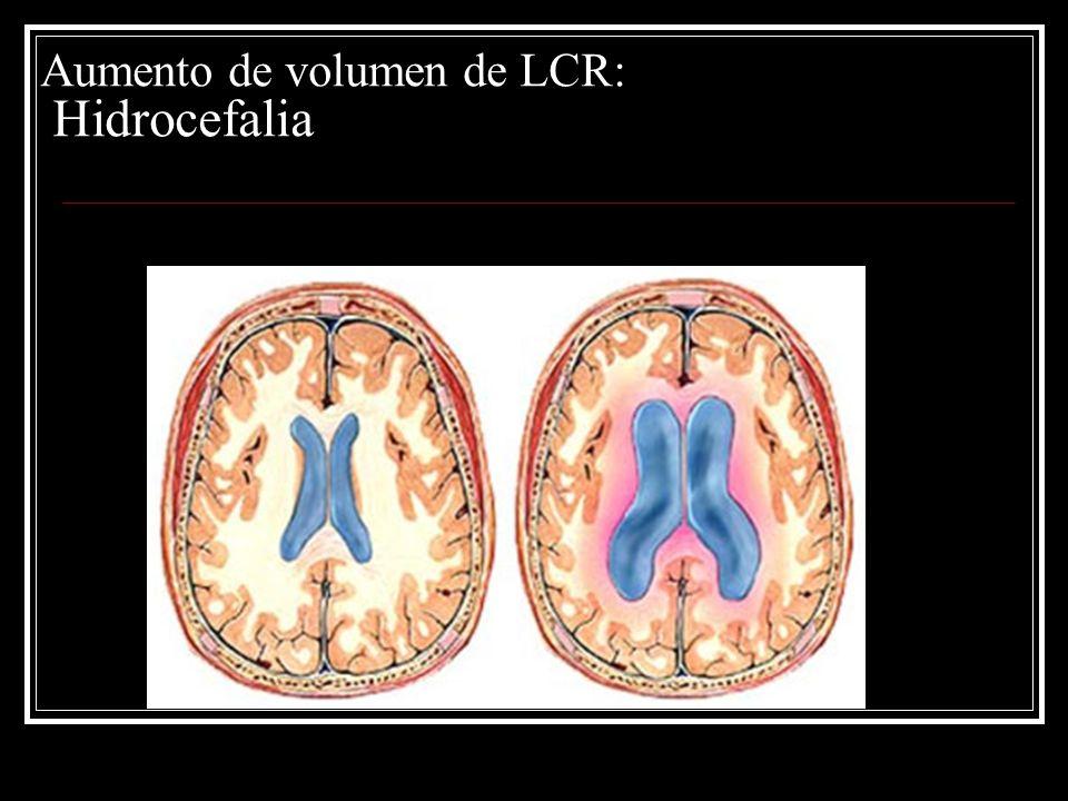 Aumento de volumen de LCR: Hidrocefalia