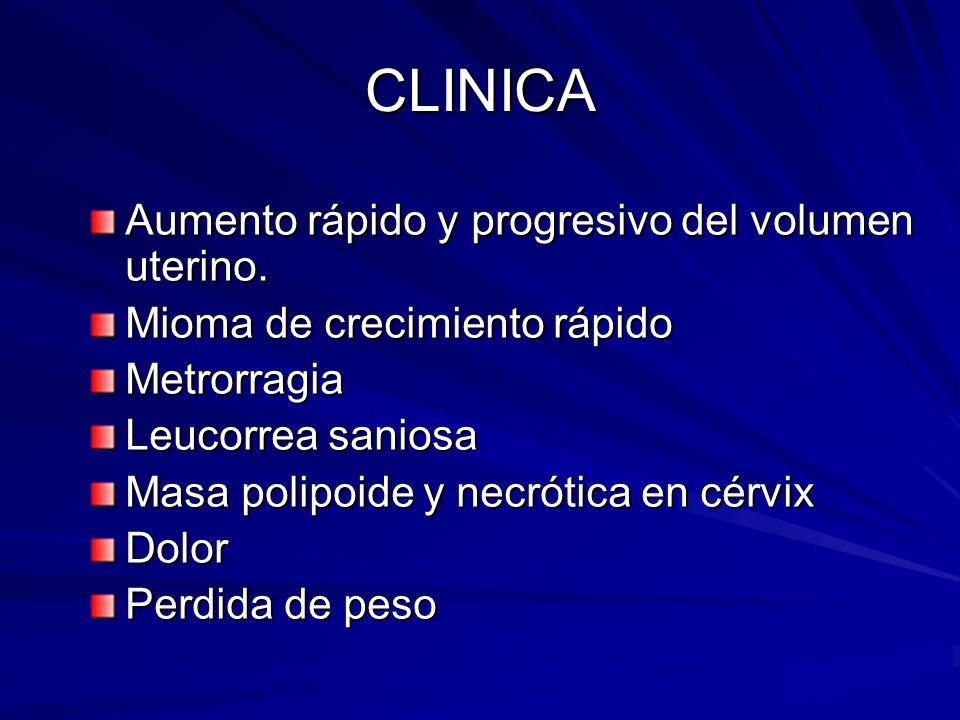 CLINICA Aumento rápido y progresivo del volumen uterino. Mioma de crecimiento rápido Metrorragia Leucorrea saniosa Masa polipoide y necrótica en cérvi