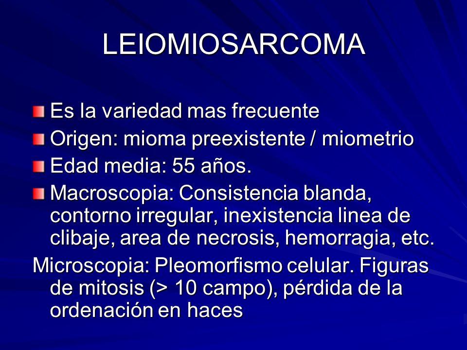 LEIOMIOSARCOMA Es la variedad mas frecuente Origen: mioma preexistente / miometrio Edad media: 55 años. Macroscopia: Consistencia blanda, contorno irr