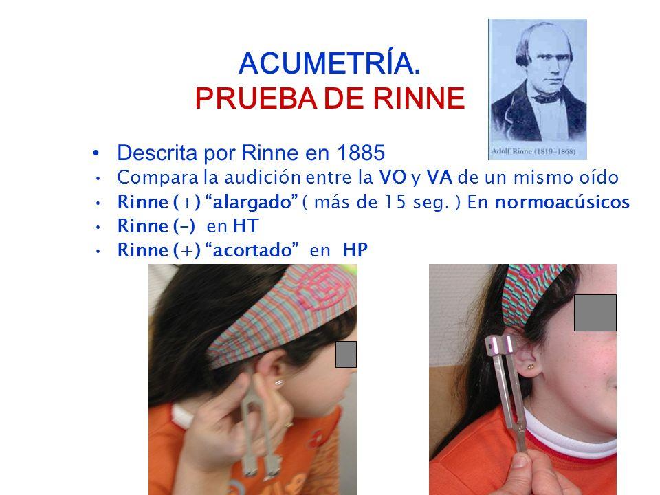 ACUMETRÍA. PRUEBA DE RINNE Descrita por Rinne en 1885 Compara la audición entre la VO y VA de un mismo oído Rinne (+) alargado ( más de 15 seg. ) En n