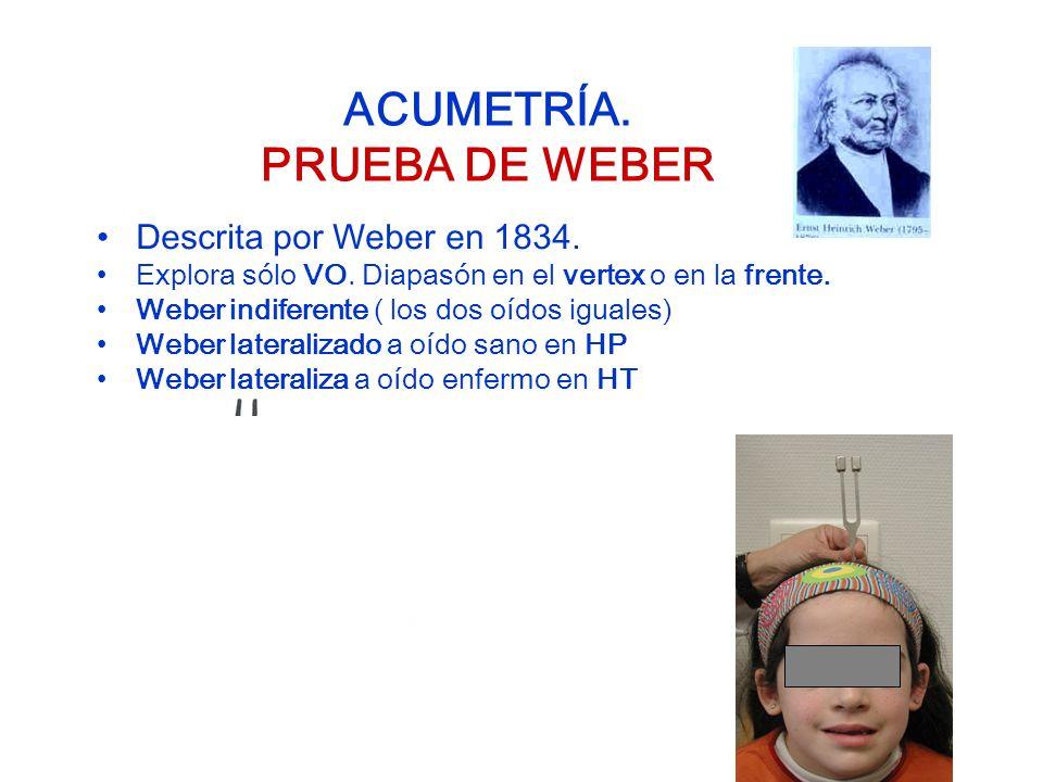 ACUMETRÍA. PRUEBA DE WEBER Descrita por Weber en 1834. Explora sólo VO. Diapasón en el vertex o en la frente. Weber indiferente ( los dos oídos iguale