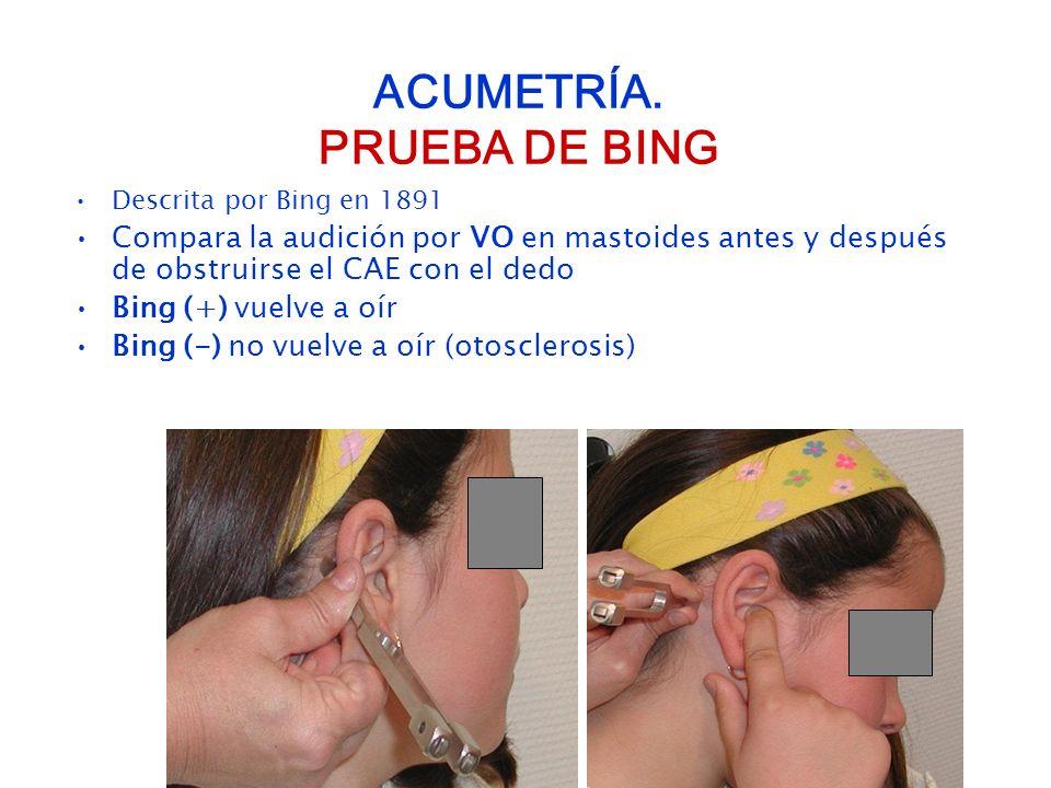 ACUMETRÍA. PRUEBA DE BING Descrita por Bing en 1891 Compara la audición por VO en mastoides antes y después de obstruirse el CAE con el dedo Bing (+)