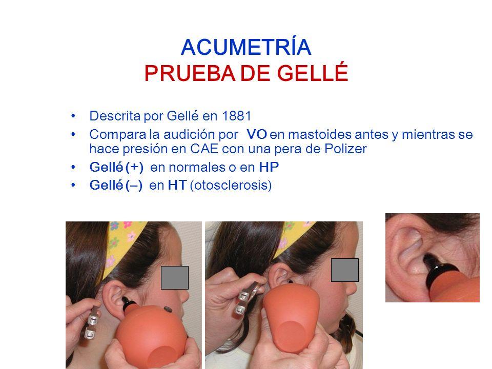 ACUMETRÍA PRUEBA DE GELLÉ Descrita por Gellé en 1881 Compara la audición por VO en mastoides antes y mientras se hace presión en CAE con una pera de P