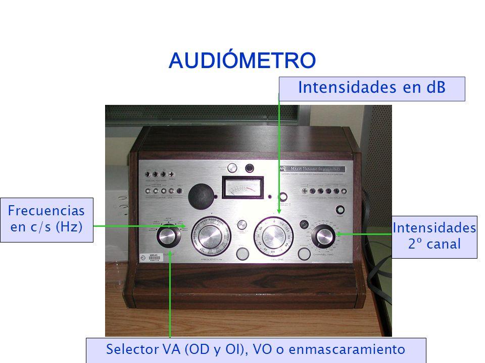 AUDIÓMETRO Intensidades en dB Frecuencias en c/s (Hz) Selector VA (OD y OI), VO o enmascaramiento Intensidades 2º canal