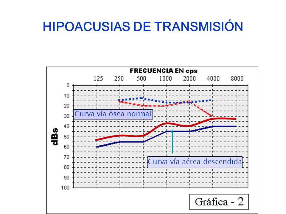 HIPOACUSIAS DE TRANSMISIÓN Curva vía ósea normal Curva vía aérea descendida