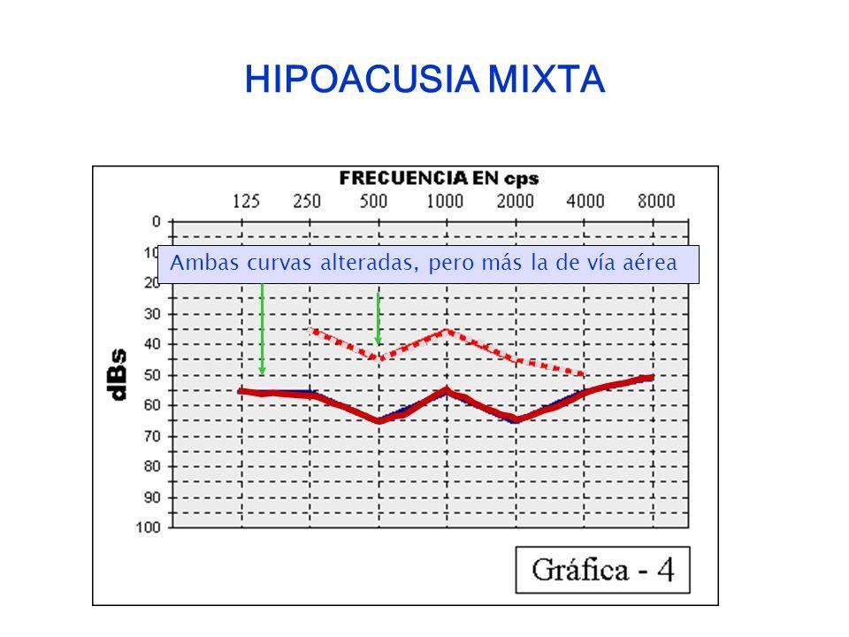 HIPOACUSIA MIXTA Ambas curvas alteradas, pero más la de vía aérea