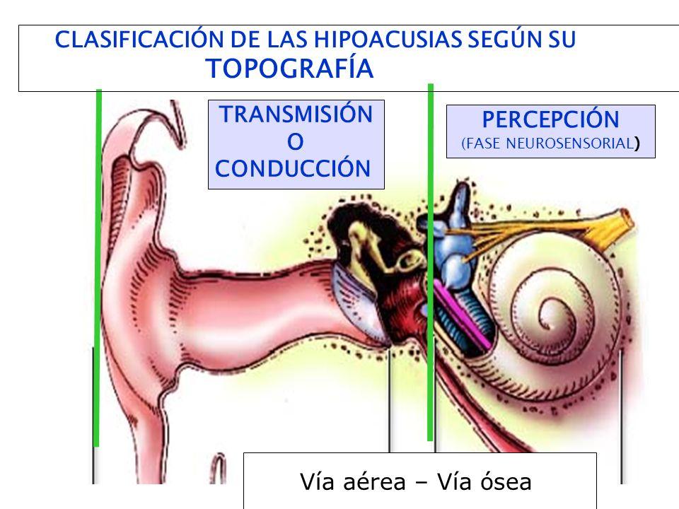 TRANSMISIÓN O CONDUCCIÓN PERCEPCIÓN (FASE NEUROSENSORIAL ) CLASIFICACIÓN DE LAS HIPOACUSIAS SEGÚN SU TOPOGRAFÍA Vía aérea – Vía ósea