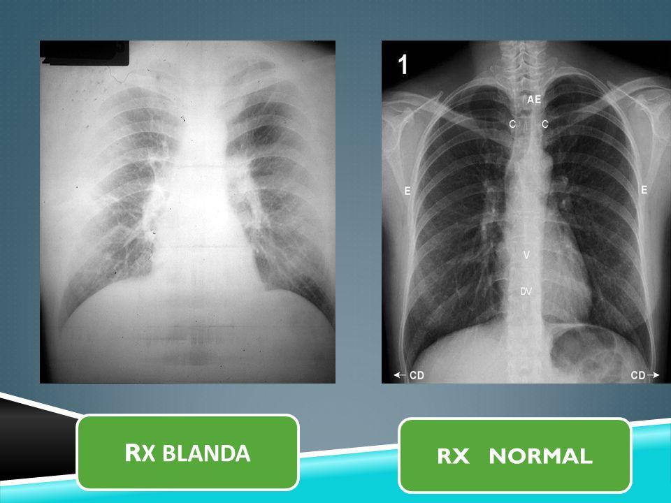 R X BLANDA RX NORMAL