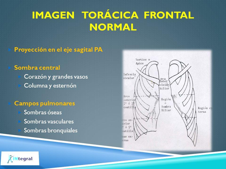 IMAGEN TORÁCICA FRONTAL NORMAL Proyección en el eje sagital PA Sombra central Corazón y grandes vasos Columna y esternón Campos pulmonares Sombras óse