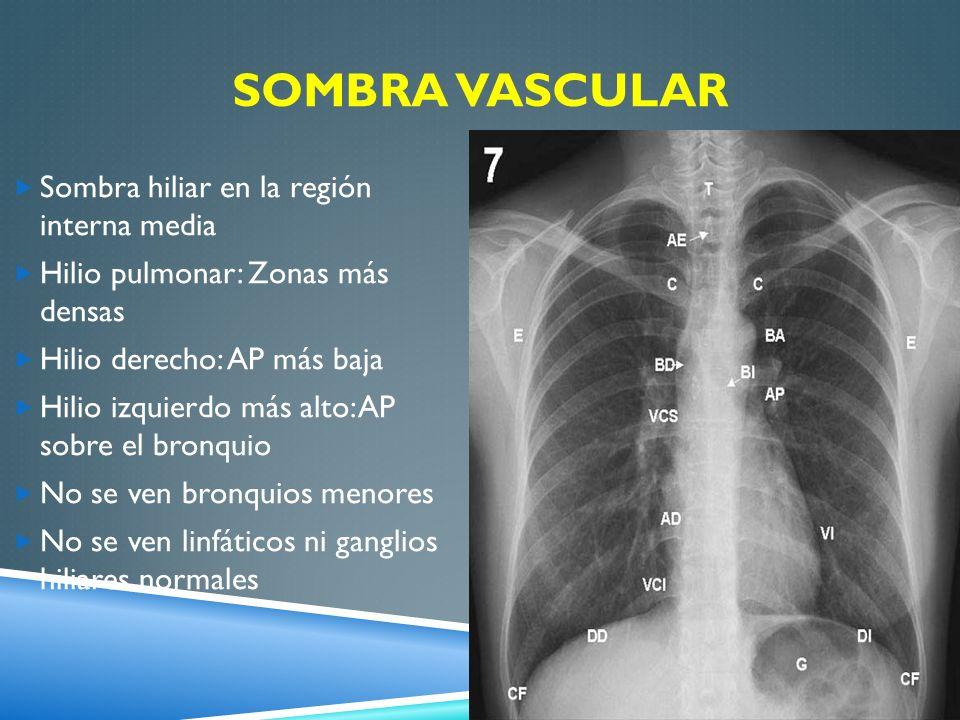 SOMBRA VASCULAR Sombra hiliar en la región interna media Hilio pulmonar: Zonas más densas Hilio derecho: AP más baja Hilio izquierdo más alto: AP sobr