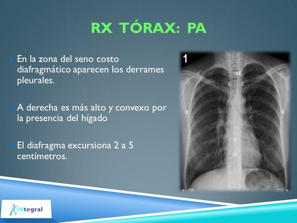 RX TÓRAX: PA En la zona del seno costo diafragmático aparecen los derrames pleurales. A derecha es más alto y convexo por la presencia del hígado El d