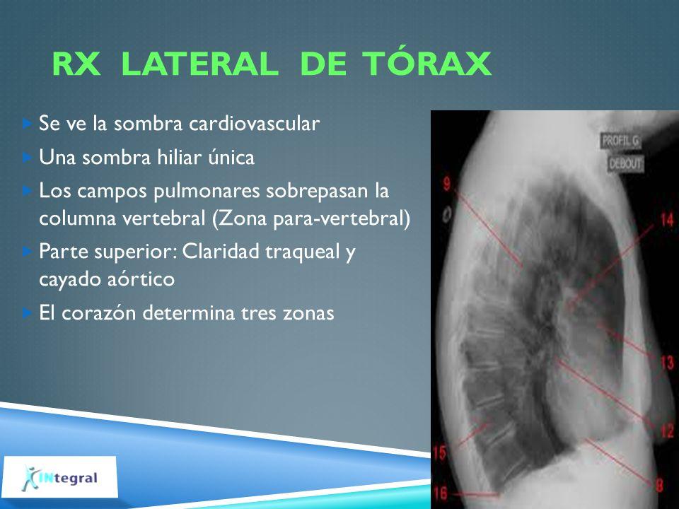 RX LATERAL DE TÓRAX Se ve la sombra cardiovascular Una sombra hiliar única Los campos pulmonares sobrepasan la columna vertebral (Zona para-vertebral)