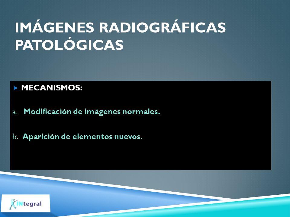 IMÁGENES RADIOGRÁFICAS PATOLÓGICAS MECANISMOS: a. Modificación de imágenes normales. b. Aparición de elementos nuevos.