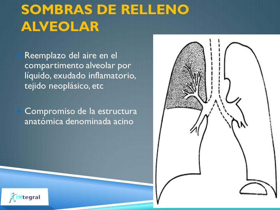 SOMBRAS DE RELLENO ALVEOLAR Reemplazo del aire en el compartimento alveolar por líquido, exudado inflamatorio, tejido neoplásico, etc Compromiso de la