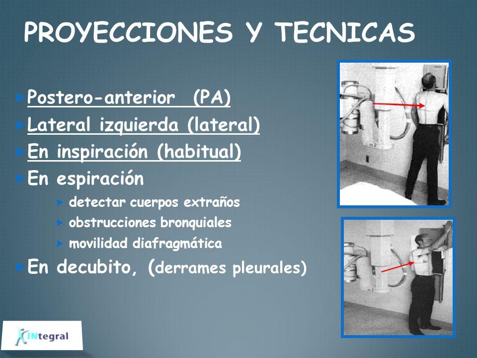 PROYECCIONES Y TECNICAS Postero-anterior (PA) Lateral izquierda (lateral) En inspiración (habitual) En espiración detectar cuerpos extraños obstruccio