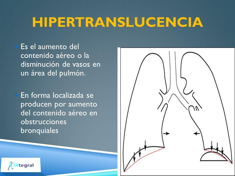 HIPERTRANSLUCENCIA Es el aumento del contenido aéreo o la disminución de vasos en un área del pulmón. En forma localizada se producen por aumento del