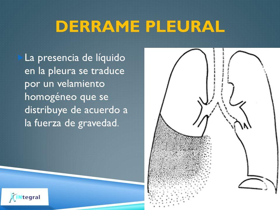 DERRAME PLEURAL La presencia de líquido en la pleura se traduce por un velamiento homogéneo que se distribuye de acuerdo a la fuerza de gravedad.