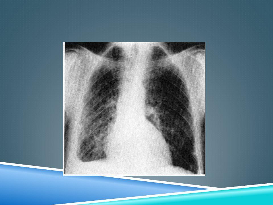 NEUMOTÓRAX La penetración de aire a la cavidad pleural se traduce por la retracción del pulmón y la formación de una cámara aérea, que se ve como un área sin dibujo pulmonar