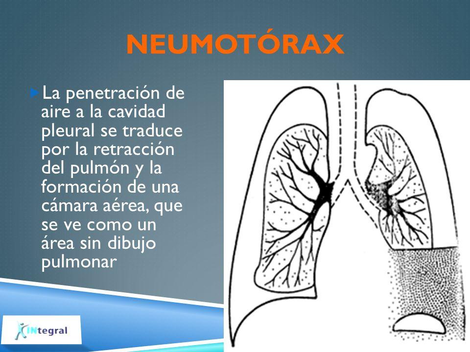 NEUMOTÓRAX La penetración de aire a la cavidad pleural se traduce por la retracción del pulmón y la formación de una cámara aérea, que se ve como un á