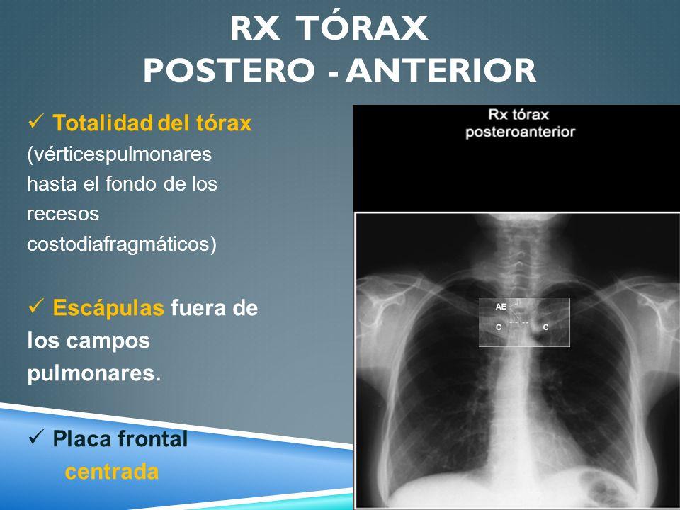 RX TÓRAX POSTERO - ANTERIOR Totalidad del tórax (vérticespulmonares hasta el fondo de los recesos costodiafragmáticos) Escápulas fuera de los campos p