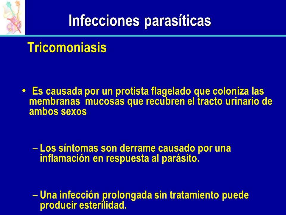 Infecciones parasíticas Tricomoniasis Es causada por un protista flagelado que coloniza las membranas mucosas que recubren el tracto urinario de ambos