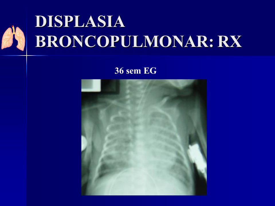 DISPLASIA BRONCOPULMONAR: RX 36 sem EG