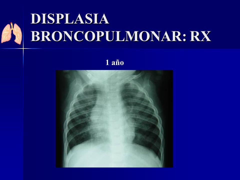 DISPLASIA BRONCOPULMONAR: RX 1 año