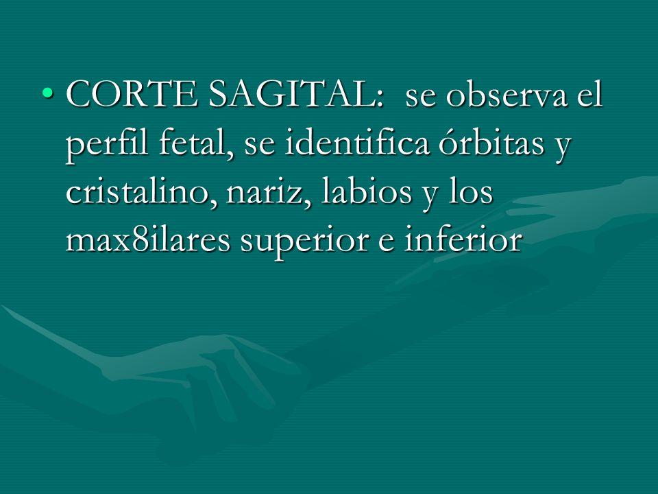 CORTE SAGITAL: se observa el perfil fetal, se identifica órbitas y cristalino, nariz, labios y los max8ilares superior e inferiorCORTE SAGITAL: se obs