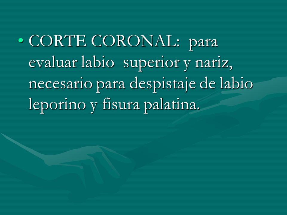 CORTE CORONAL: para evaluar labio superior y nariz, necesario para despistaje de labio leporino y fisura palatina.CORTE CORONAL: para evaluar labio su