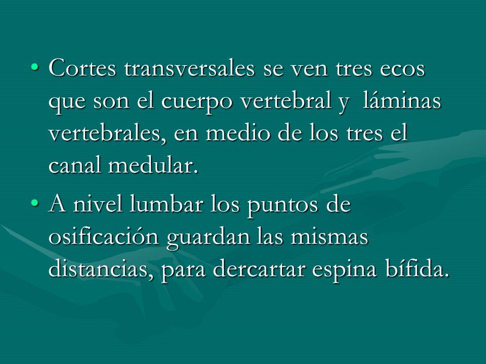 Cortes transversales se ven tres ecos que son el cuerpo vertebral y láminas vertebrales, en medio de los tres el canal medular.Cortes transversales se