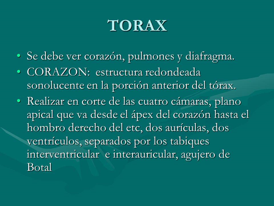 TORAX Se debe ver corazón, pulmones y diafragma.Se debe ver corazón, pulmones y diafragma. CORAZON: estructura redondeada sonolucente en la porción an