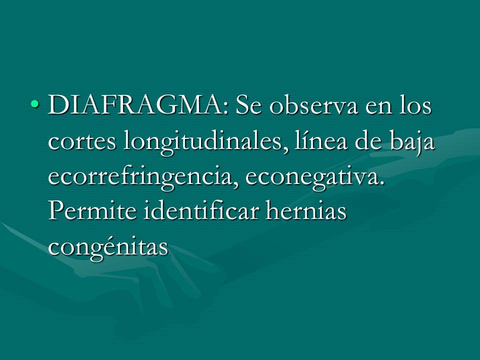 DIAFRAGMA: Se observa en los cortes longitudinales, línea de baja ecorrefringencia, econegativa. Permite identificar hernias congénitasDIAFRAGMA: Se o