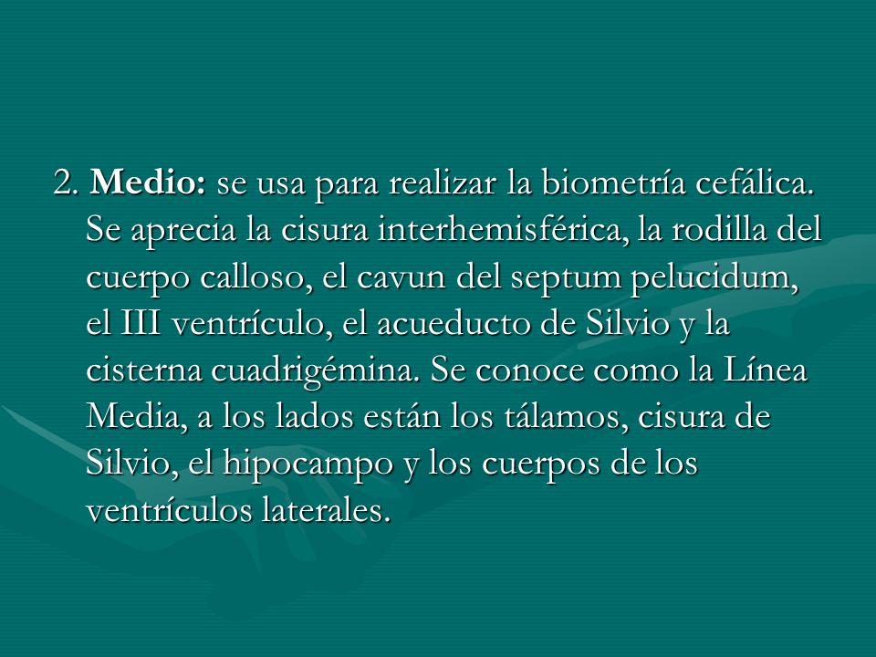 2. Medio: se usa para realizar la biometría cefálica. Se aprecia la cisura interhemisférica, la rodilla del cuerpo calloso, el cavun del septum peluci