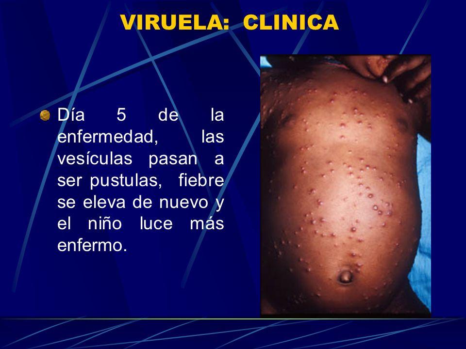 VIRUELA: CLINICA Segundo día de rash, pápulas aparecen en el tronco, todas las papulas de una forma similar