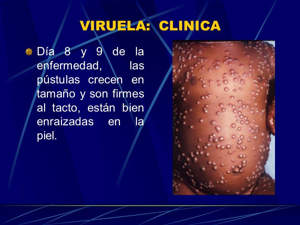VIRUELA: CLINICA Día 5 de la enfermedad, las vesículas pasan a ser pustulas, fiebre se eleva de nuevo y el niño luce más enfermo.